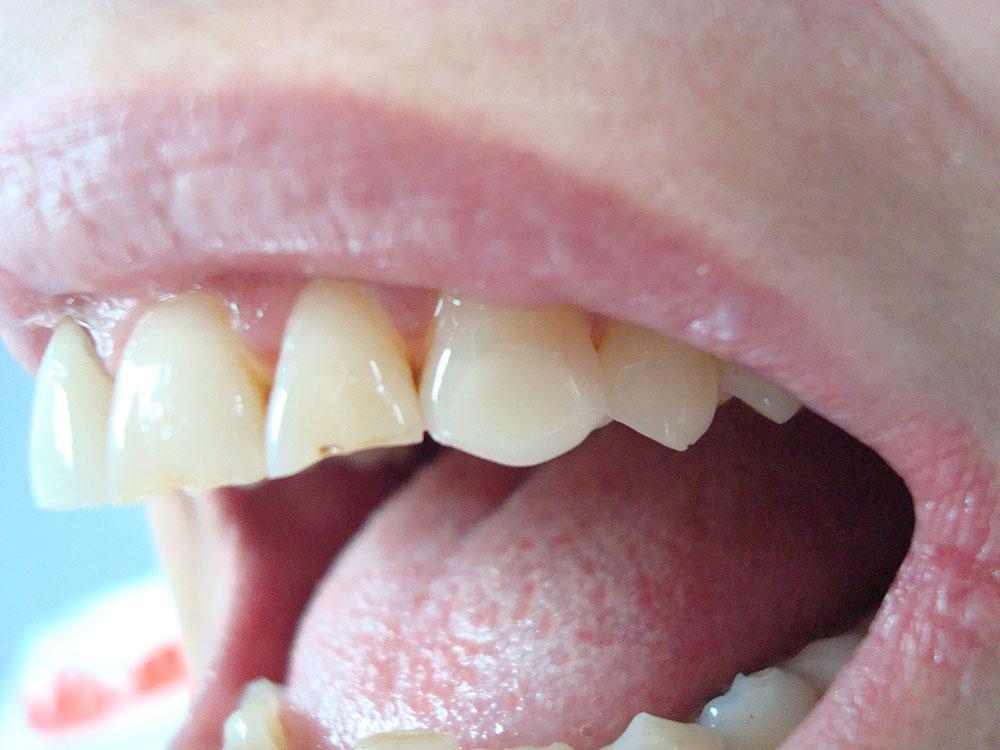 Injectables / Facial Aesthetics