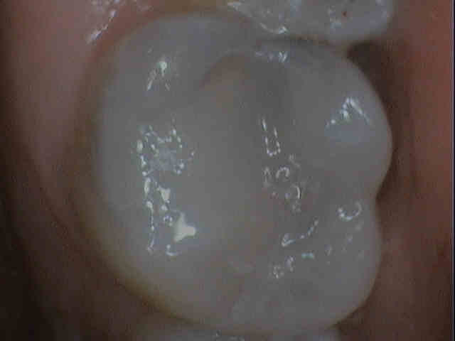 CEREC with Galileos 3D xray Integration