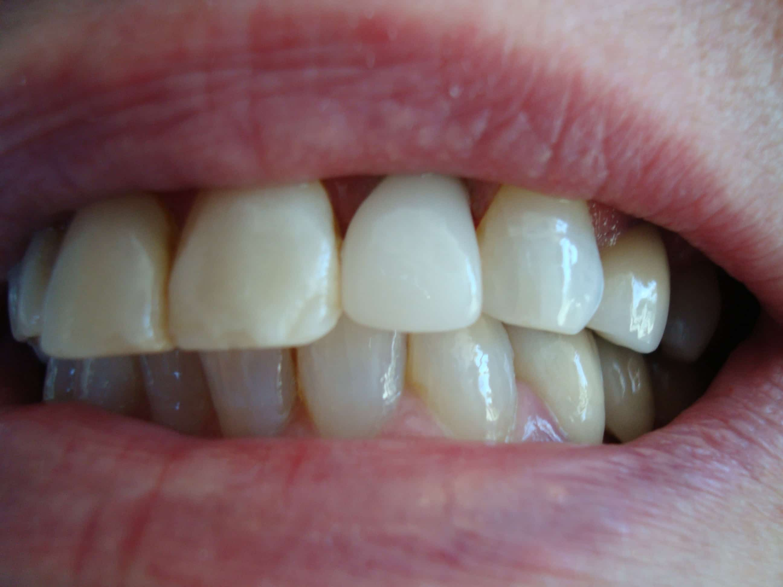 Before and After - Crownsville Dental & Wellness Solutions